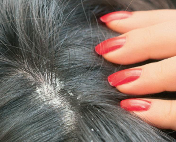 12 Homemade Dandruff Treatments amp Shampoos  Everyday Roots